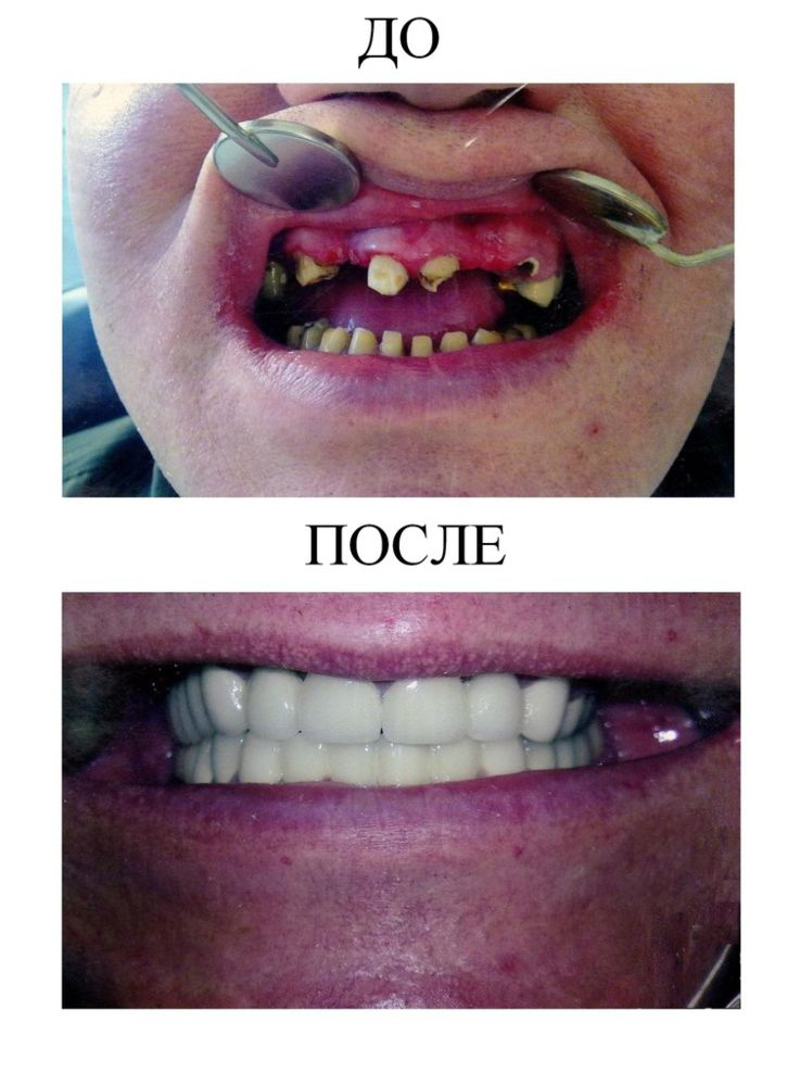 002 Nesemnyj metallokeramicheskij mostovidnyj protez (1)