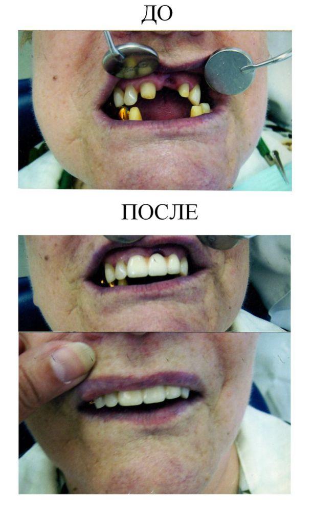 002 Nesemnyj metallokeramicheskij mostovidnyj protez (2)