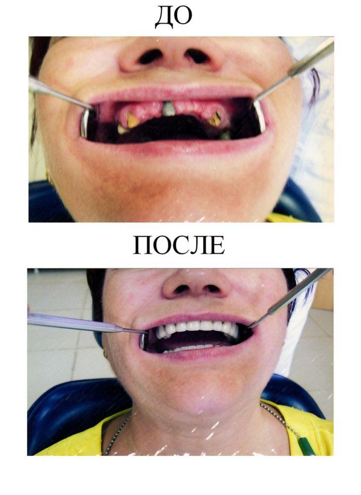 002 Nesemnyj metallokeramicheskij mostovidnyj protez (3)