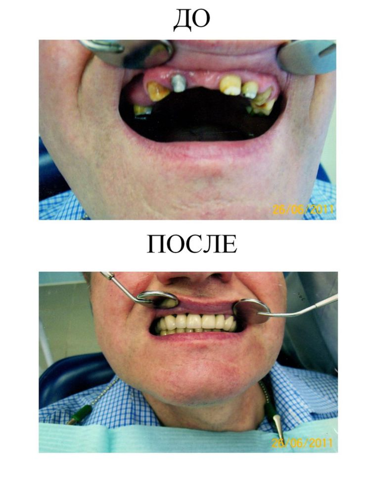 002 Nesemnyj metallokeramicheskij mostovidnyj protez (5)