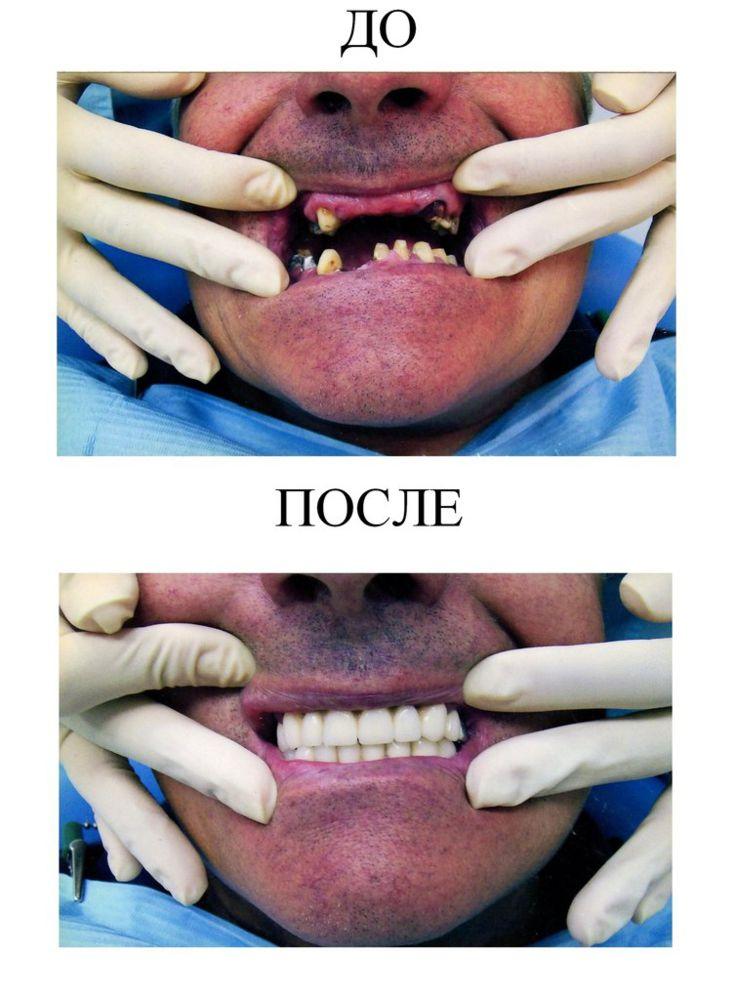 002 Nesemnyj metallokeramicheskij mostovidnyj protez (6)
